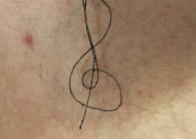 treble clef thread